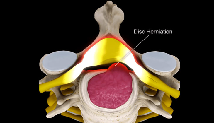 Cervical disc prolapse