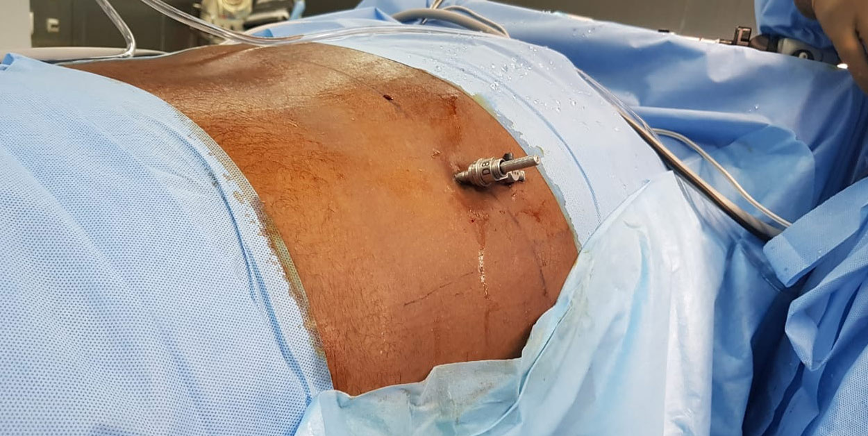 lumbar disc surgery