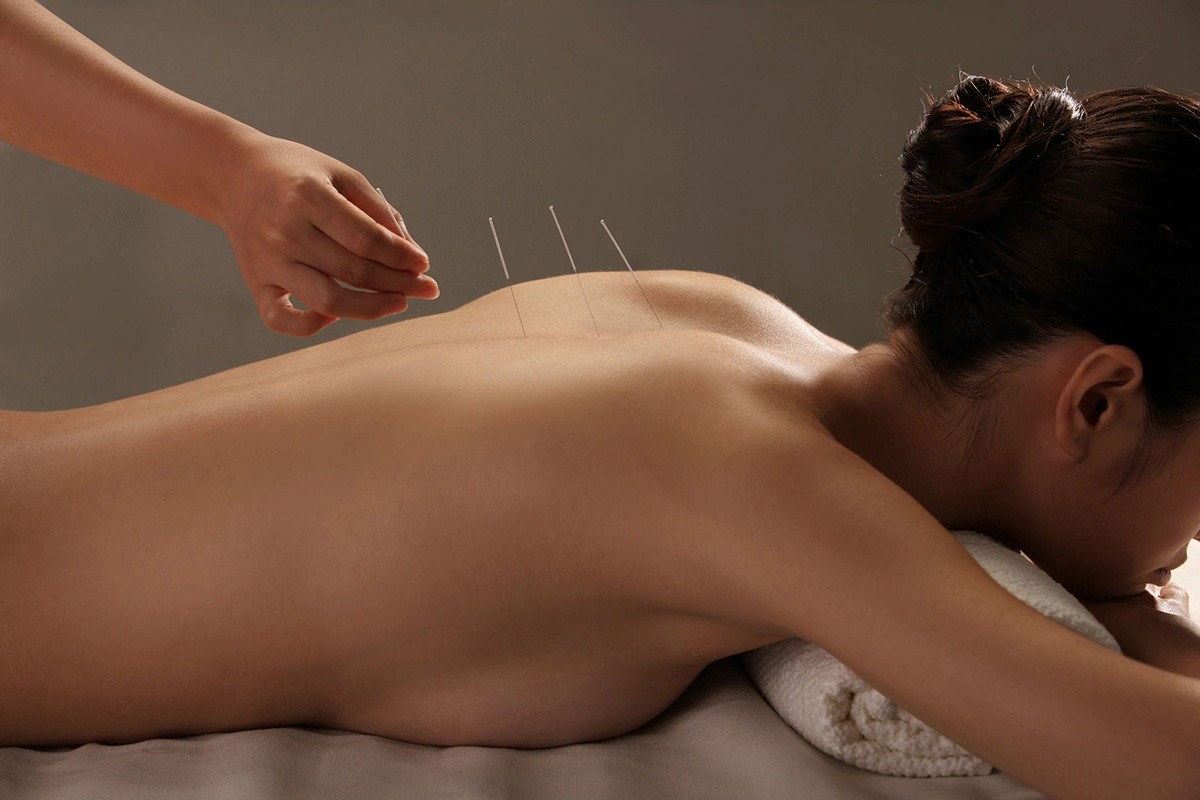 ALTERNATIVE MEDICINE –  ACUPUNCTURE TREATMENT