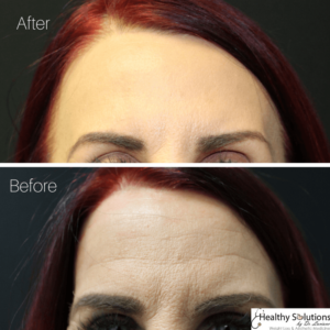 Before & After Photos Botox at Healthy Solutions by Dr. Luciano Medpsa