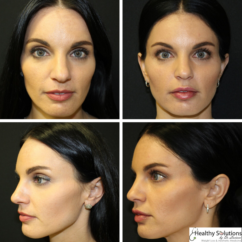 Before and after cheek fillers