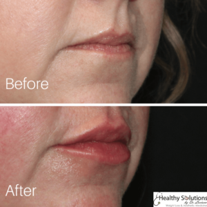 Before and after photo lips at Healthy Solutions by Dr. Luciano