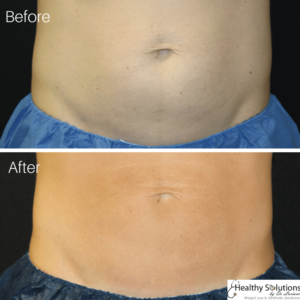 Coolsculpting before and after belly fat