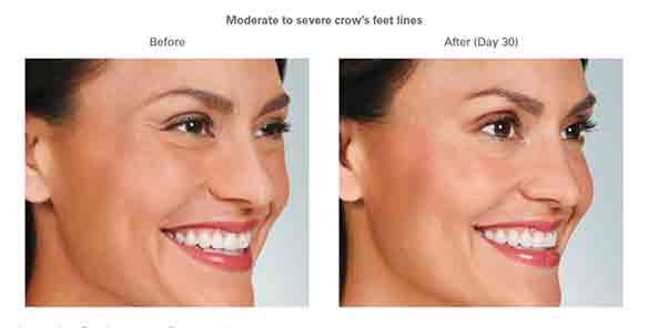Botox Before and After Moderate to Severe crow's feet lines
