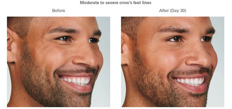 Botox Before and After for Men Moderate to Severe crow's feet lines