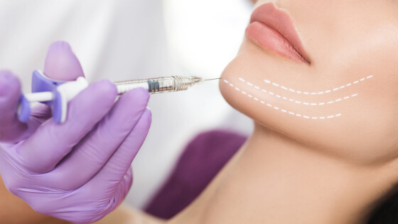 chin augmentation with Juvederm Voluma