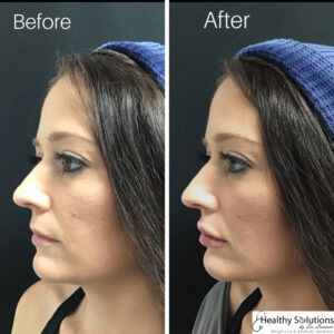lip filler before and after photo lip augmentation lip injections