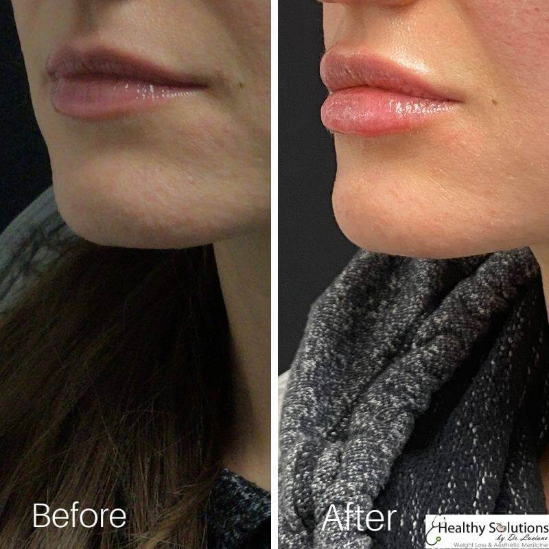 Lip filler Before and After Healthy Solutions by Dr Luciano Medspa