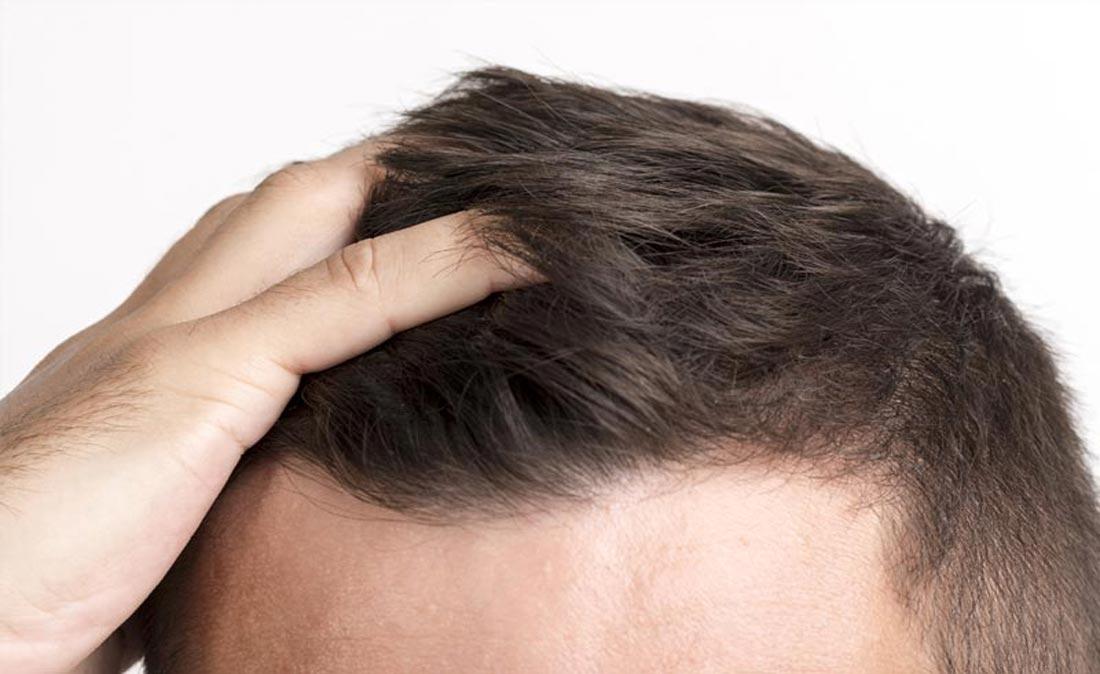 hairloss-homepage
