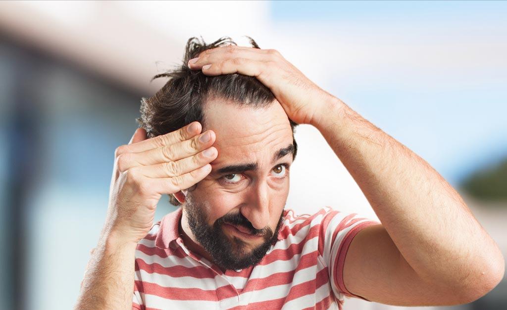 hair-loss-resource-image