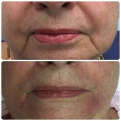This patient wanted to focus on softening the smile lines (nasolabial folds) & marionette lines along the jaw. Juvederm Ultra was used for this specific patient with a total of 2cc's injected over 2 visits.