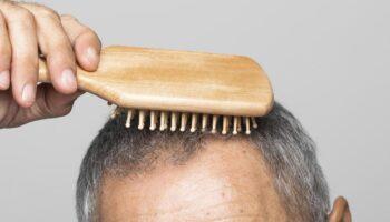 blog-image-hair-loss-2021-part3