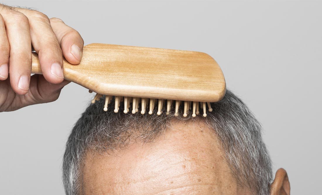 Should I See a Doctor About Hair Loss?