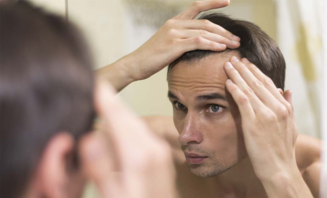 The Percentages of Hair Loss