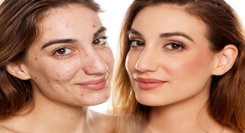 Foods To Avoid If You Have Acne
