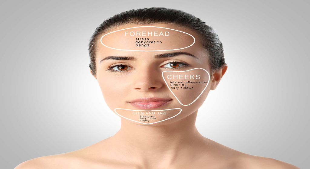 What is causing your breakouts?