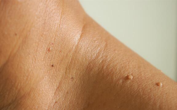 aspire dermatology