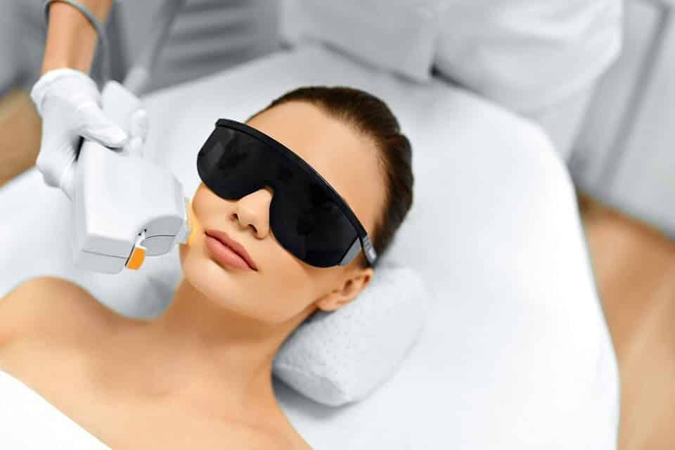 IPL skin tightening treatment
