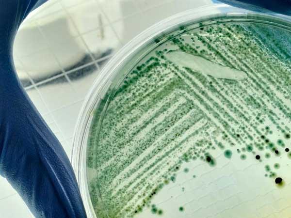 Cómo la microbiota intestinal afecta a la esperanza de vida