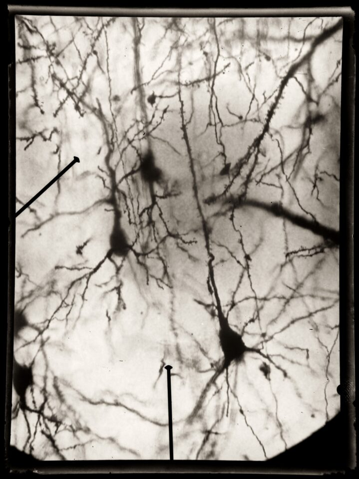 Santiago Ramón y Cajal, el hombre que dibujó los secretos del cerebro