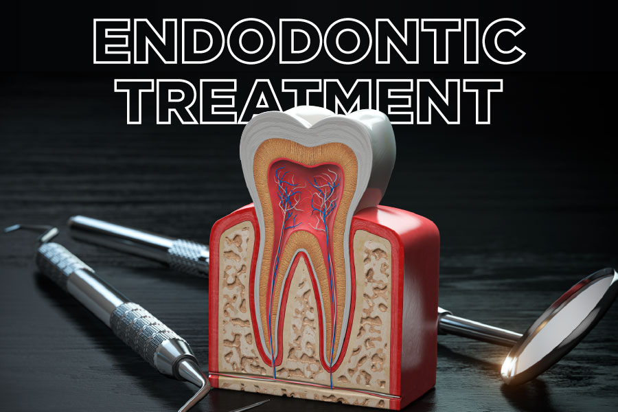 Endodontic Treatment - Root Canal