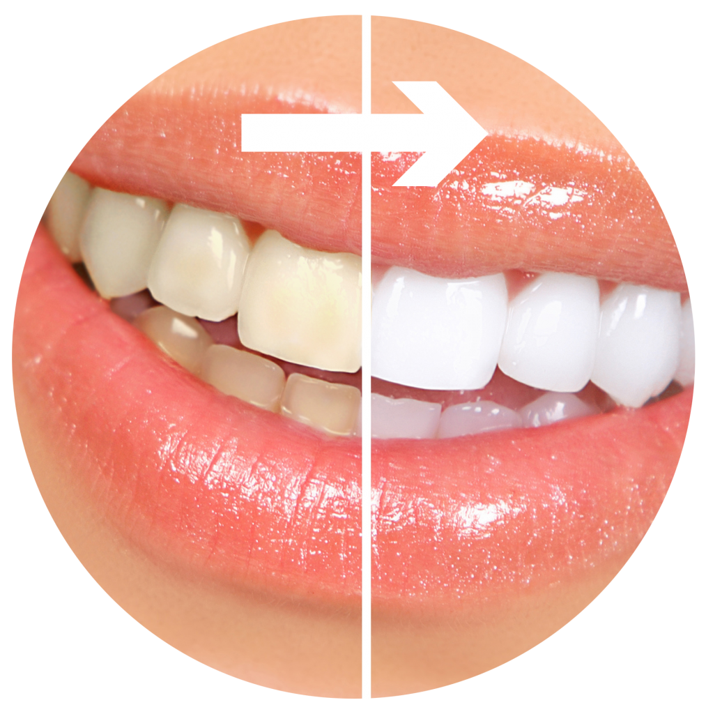 Before and After in dental Tijuana
