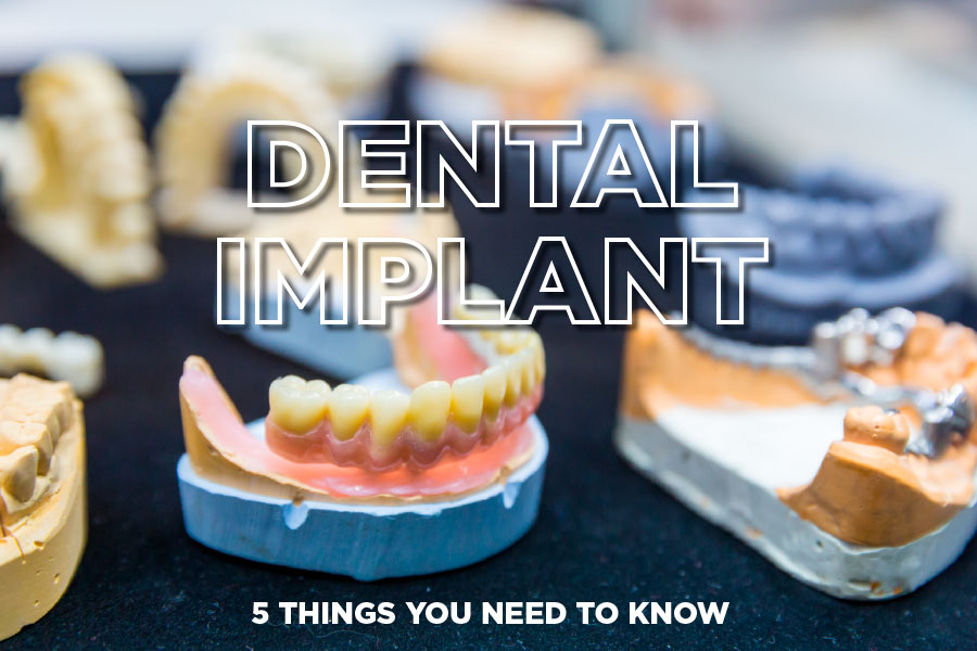 5 Things you Need to Know About your Dental Implant