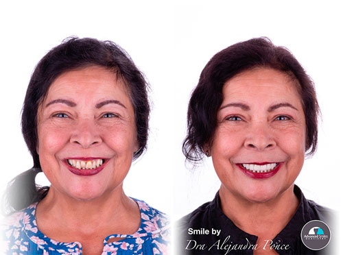 Dental-Crowns-Advanced-Smiles-Dentistry-Tijuana