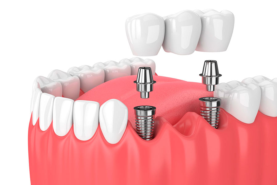 Implant-Supported Bridges and Dentures.