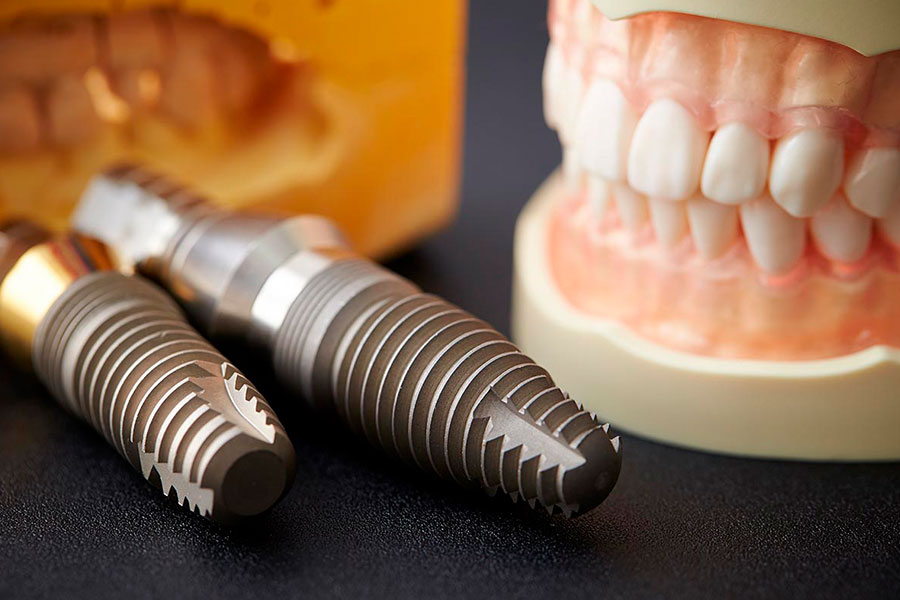 What makes a dental implant so strong?