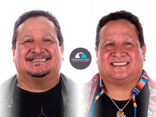 Chula-Vista-cosmetic-Dentistry