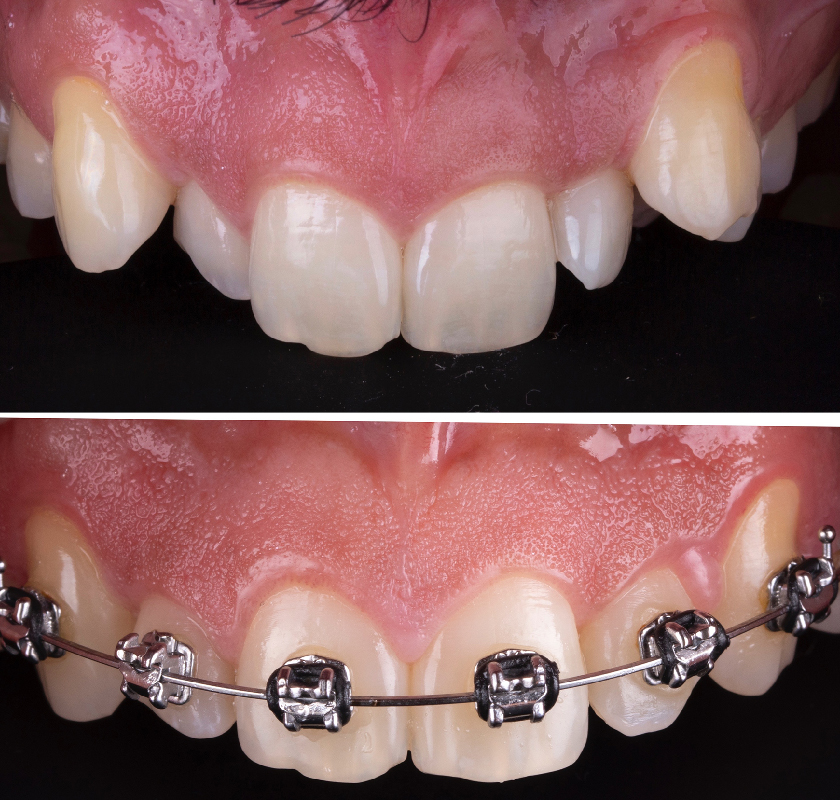 Braces-For-Adults