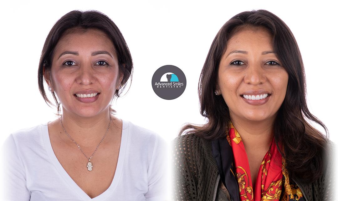 dentist_in_tijuana