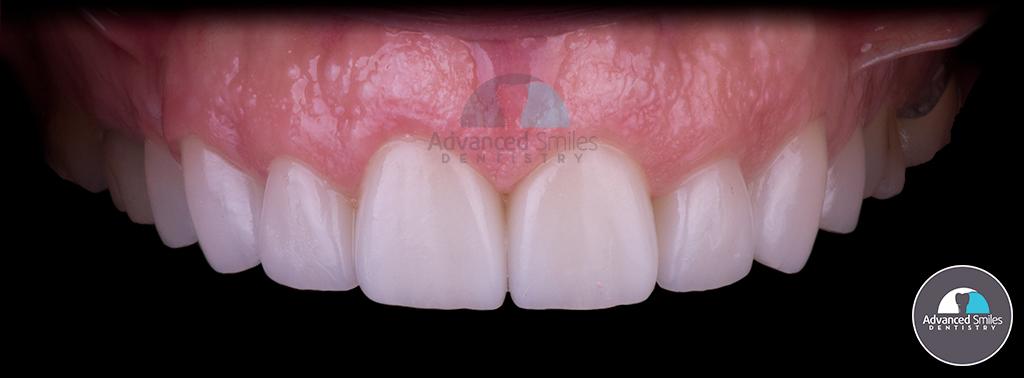 dentist_near-me