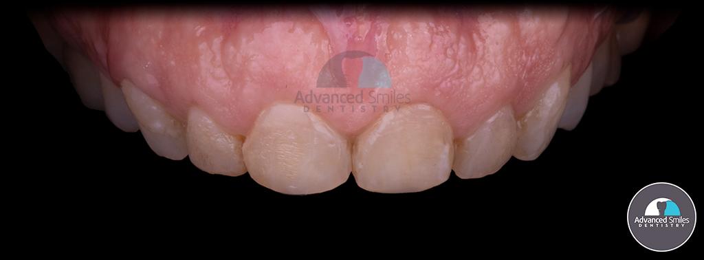 tijuana_dentist