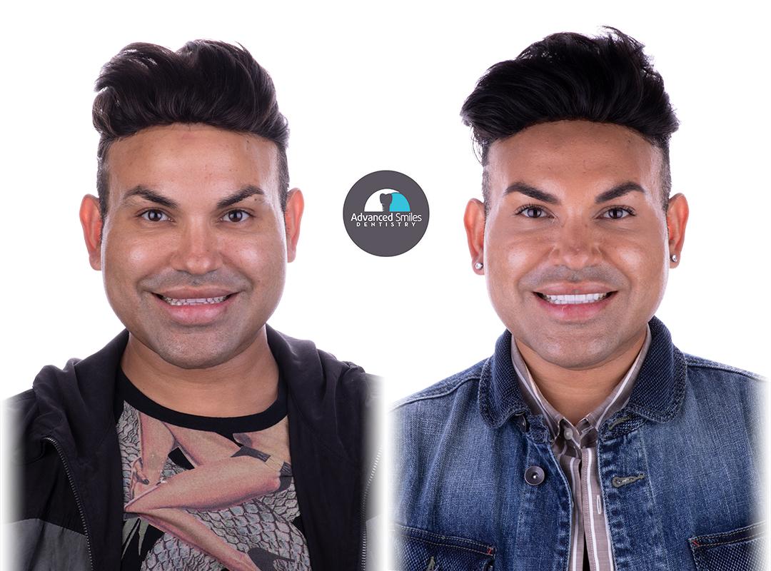 dentist_in_tijuana_mexico