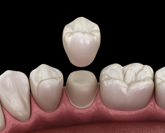 Getting a crown after a root canal