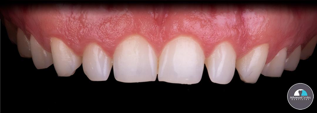 top-dentist-in-tijuana