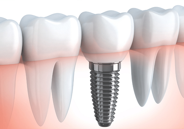 Missing Tooth? What are my options.