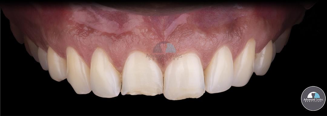 smile make over dentist in tijuana