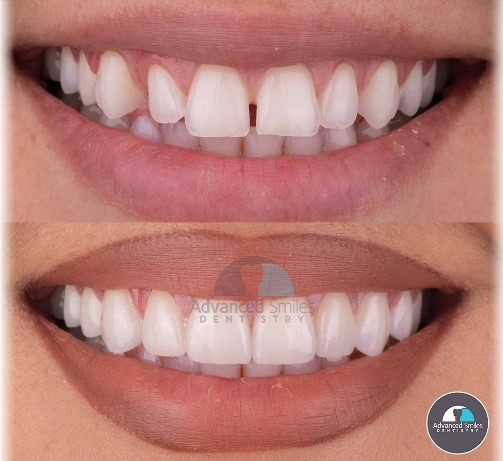 affordable-dentist-in-tijuana