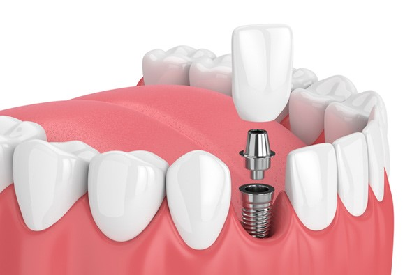 How many visits does it take for a dental implant?