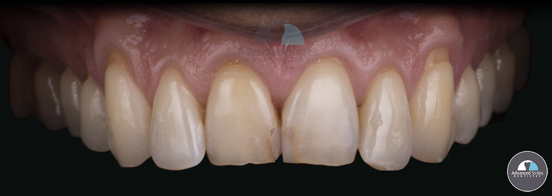 zirconia veneers-smile