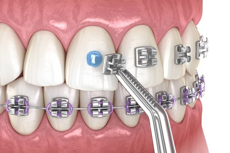 All you need to know about wearing braces