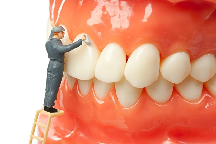 Top 4 dental cleanings in Advanced Smiles Dentistry