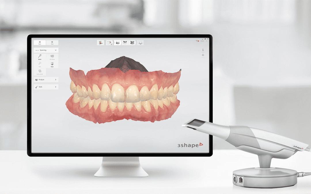 3D Intra-oral Scan