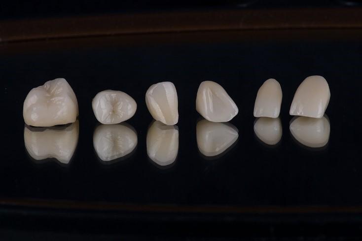Dental crowns in Tijuana