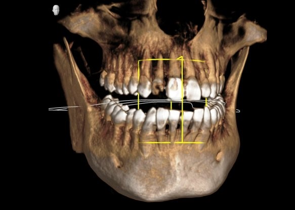 What is CT scan or 3D x-ray?