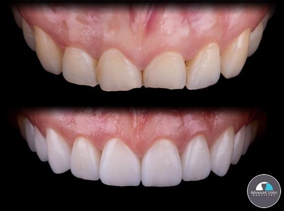 Dental Crowns or Dental Veneers