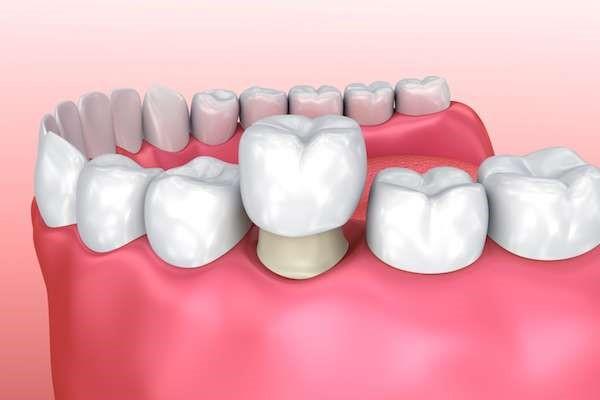 Why do I need a temporary dental crown?